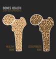 osteoporosis bone image vector image vector image