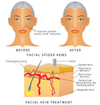 Veins on face vector image vector image