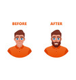 beard growth concept vector image
