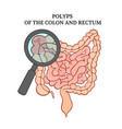 polyps colon intestines medicine anatomy ve vector image