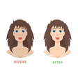 Cosmetic peeling Laser peeling before after vector image vector image