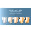 dental caries stages medical poster banner vector image