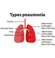 Diagram showing types pneumonia vector image vector image