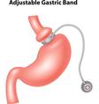 Cartoon of Adjustable Gastric Band vector image vector image