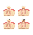 Cartoon Tooth with Stages of Dental Caries vector image