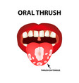 oral thrush candidiasis on tongue fungus in vector image vector image