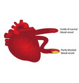 heart with normal and partly blocked blood vessel vector image