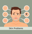 male facial skin problems vector image vector image