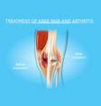knee pain and arthritis treatment chart vector image