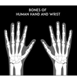 Bones of human hands and wrists vector image