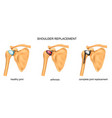 shoulder replacement surgery vector image vector image