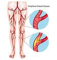 peripheral arterial disease diagram
