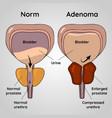 normal bladder and bph problem prostate adenoma vector image