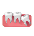 wisdom tooth cut through 3d realistic style vector image vector image