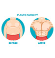Plastic surgery man before and after vector image vector image