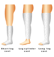 Leg casts vector image vector image