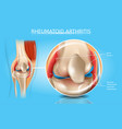 rheumatoid arthritis medical scheme vector image