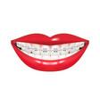 dentist orthodontist braces vector image vector image