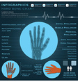 Hand Bone Infographic Infocharts Health And vector image