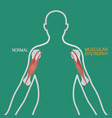 muscular dystrophy vector image