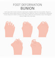 foot deformation as medical desease infographic vector image vector image
