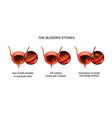 formation of bladder stones vector image vector image