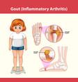 gout inflammatory arthritis medical information vector image