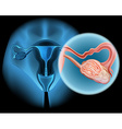 Ovarian cancer diagram in woman vector image vector image