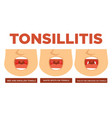 tonsillitis red and swollen tonsils white spots vector image