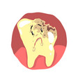 tooth decay cartoon character with sad face vector image