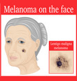 melanoma on the cheek vector image vector image