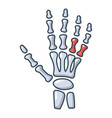 inflammation of hand icon cartoon style vector image vector image