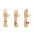 Types of bleeding vector image vector image
