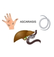dirty hands roundworm obstruction of the liver vector image vector image