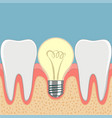 dental implant light bulb between teeth vector image vector image