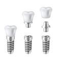 dental implants set medical and dentist vector image