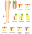 Epilation vector image