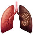Normal lung and lung cancer vector image vector image