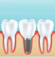 dental implant realistic vector image