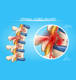 human spinal cord injury anatomical scheme vector image vector image