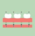 dental prostheses filling denture on gum vector image