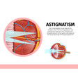 structure of human eye with astigmatism disease vector image vector image