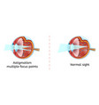 normal human eye sight and astigmatism scheme vector image vector image