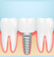 realistic dental implant installation of dental vector image vector image