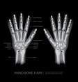 hand bone x-ray vector image