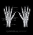 hand bone x-ray vector image
