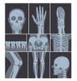 set of x-rays shots hand vector image
