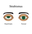 Diseases of the eye - strabismus A variation of vector image vector image