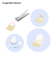 A Fungal Nail Infection and Take Care vector image