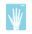 radiogram hand x-ray or roentgenogram vector image vector image